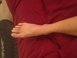 healed eczema