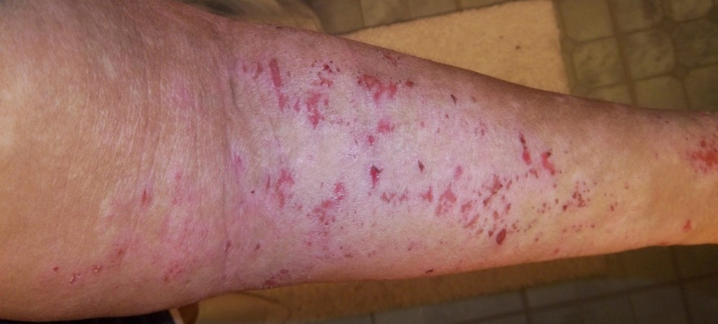 topical steroid withdrawal
