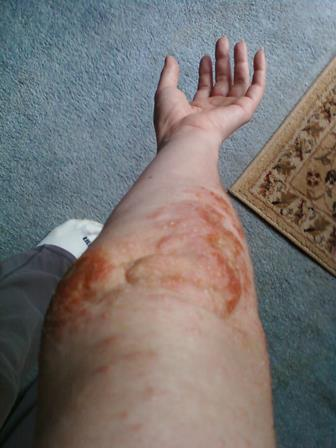 dermatitis arm