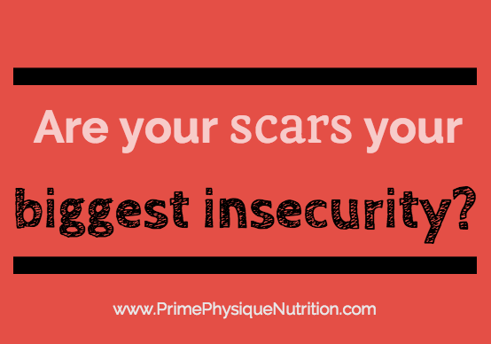 eczema scars insecure