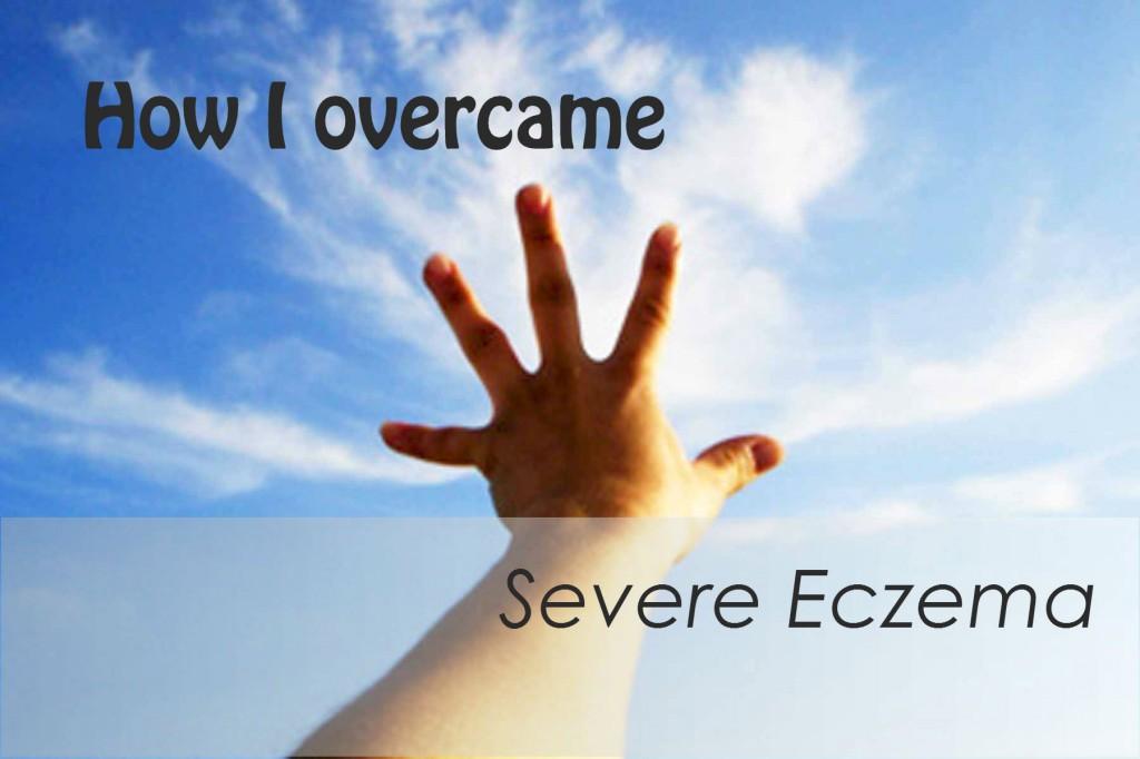 how-i-overcame-severe-eczema