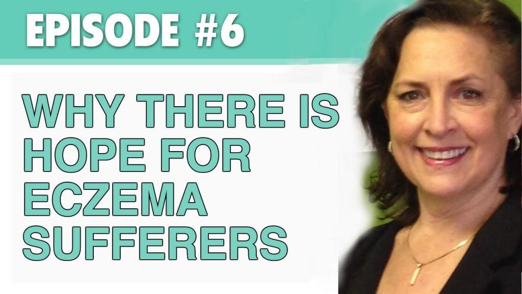 hope for eczema