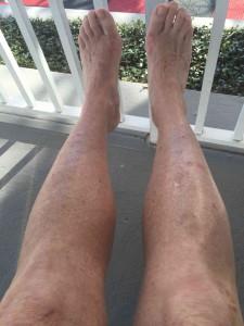 eczema healed