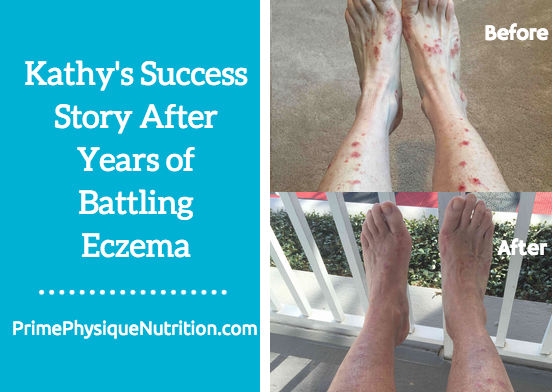 kathys eczema success story resized