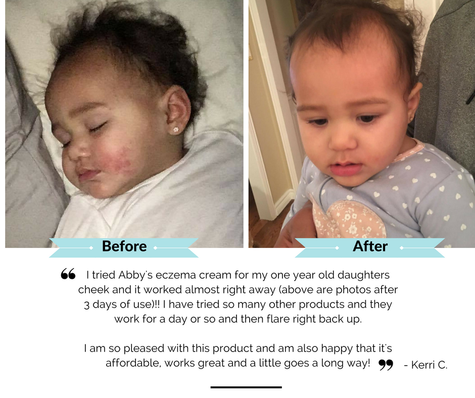 before after eczema