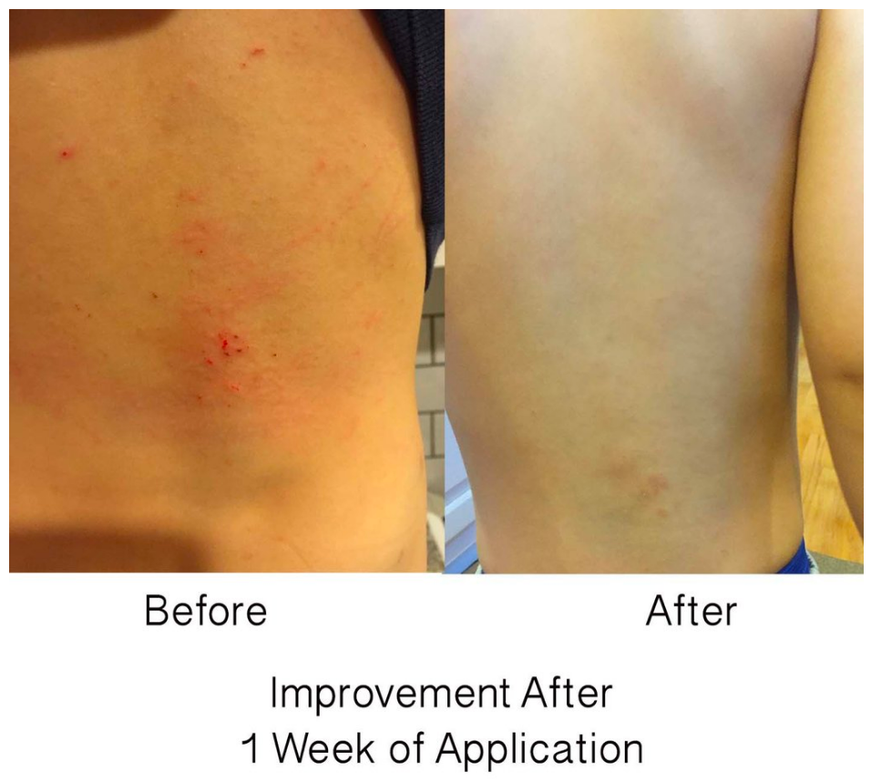 dr wang before n after pics eczema