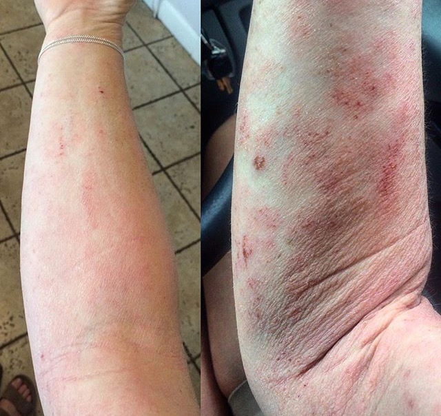 How Alice Achieved Clear Skin & Overcame Severe Dermatitis