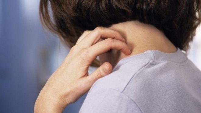 itching eczema