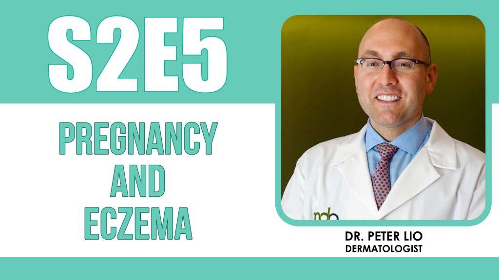 Eczema in pregnancy